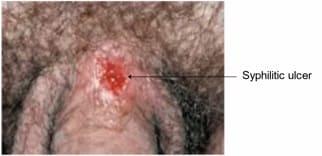 herpes genital sau hpv)